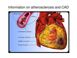 Information on atherosclerosis and CAD