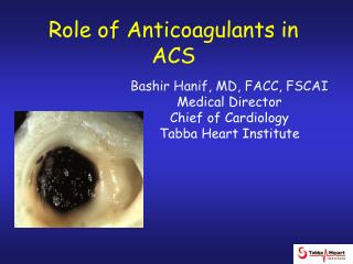Role of Anticoagulants in ACS