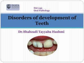 Disorders of development of Teeth