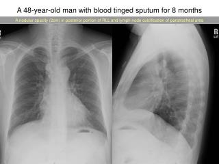 A 48-year-old man with blood tinged sputum for 8 months
