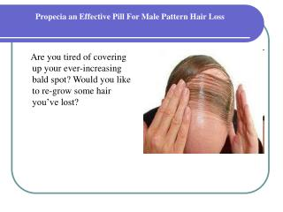 Propecia an Effective Pill For Male Pattern Hair Loss