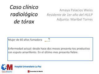 Caso cl�nico radiol�gico  de t�rax