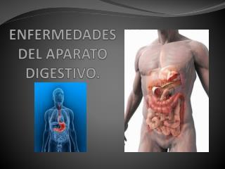 ENFERMEDADES DEL APARATO DIGESTIVO.