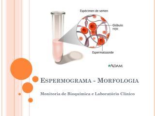 Espermograma  - Morfologia