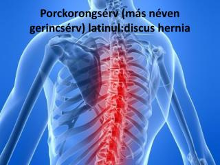 Porckorongsérv (más néven  gerincsérv) latinul: discus hernia
