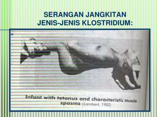 SERANGAN JANGKITAN JENIS-JENIS KLOSTRIDIUM: