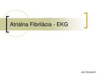 Atri álna Fibrilácia  -  EKG