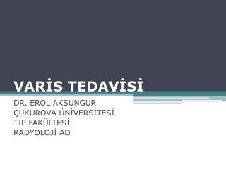 VARİS TEDAVİSİ