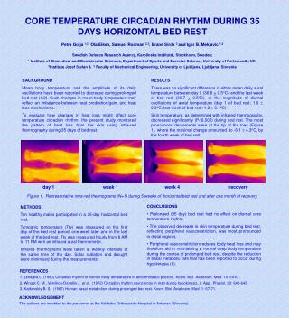 CORE TEMPERATURE CIRCADIAN RHYTHM DURING 35 DAYS HORIZONTAL BED REST