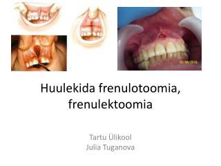 Huulekida frenulotoomia ,  frenulektoomia