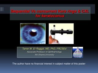 Sequential Vs concurrent Kera rings & CXL for keratoconus