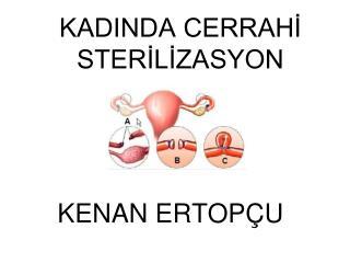 KADINDA CERRAHİ STERİLİZASYON