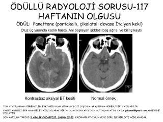Otuz üç yaşında kadın hasta. Ani başlayan şiddetli baş ağrısı ve bilinç kaybı