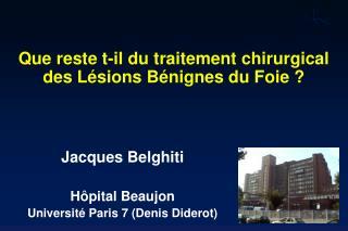 Que reste t-il du traitement chirurgical des Lésions Bénignes du Foie ?