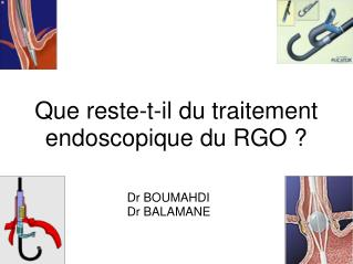 Que reste-t-il du traitement endoscopique du RGO ?