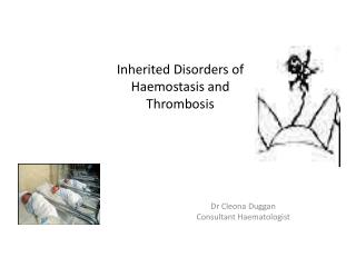 Inherited Disorders of Haemostasis and Thrombosis