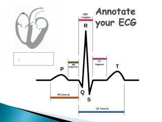Annotate your ECG