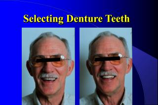 Selecting Denture Teeth