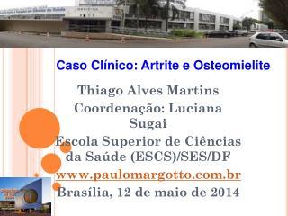 Thiago Alves Martins Coordenação: Luciana Sugai Escola Superior de Ciências da Saúde (ESCS)/SES/DF