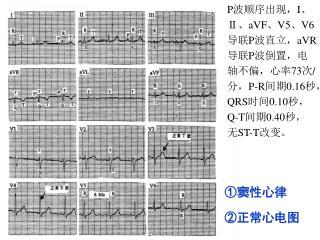 ① 窦性心律 ②正常心电图