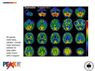 88 yaşında erkek hasta, yaklaşık 1 senedir major depresyon belirtileri ile takip edilen