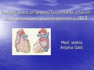 Postupci sestre pri prijemu bolesnika sa srčanom dekompenzacijom i plućnim edemom u  JIKS