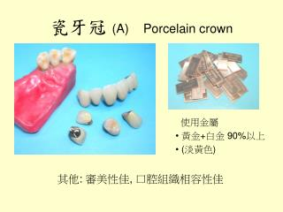 瓷牙冠  (A) Porcelain crown