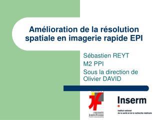 Amélioration de la résolution spatiale en imagerie rapide EPI