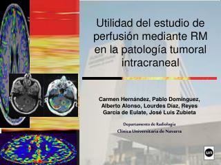 Utilidad del estudio de perfusión mediante RM en la patología tumoral intracraneal