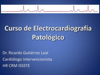 Curso de Electrocardiografía Patológico