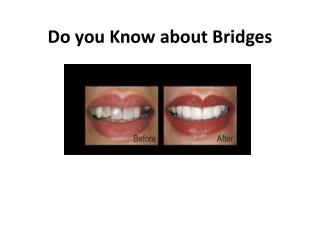 Do you Know about Bridges