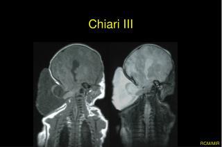 Chiari III