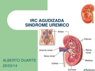 IRC AGUDIZADA SINDROME UREMICO