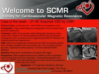 Case of the week – 07-08: Acquired VSD by CMR
