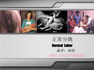 正常分娩 Normal  Labor