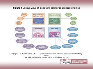Figure 1  Various ways of classifying colorectal adenocarcinomas