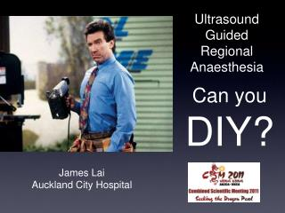Ultrasound Guided Regional Anaesthesia
