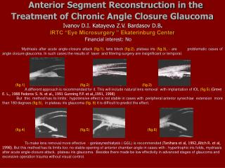 Anterior Segment Reconstruction in the Treatment of Chronic Angle Closure Glaucoma