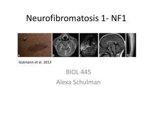 Neurofibromatosis 1- NF1