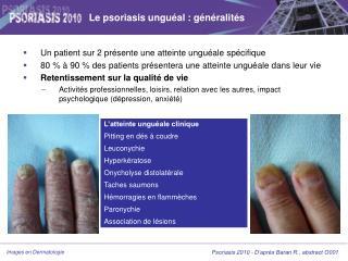 Le psoriasis unguéal : généralités