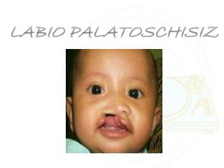 LABIO PALATOSCHISIZ
