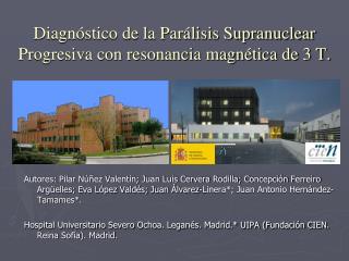 Diagn stico de la Par lisis Supranuclear Progresiva con resonancia magn tica de 3 T.