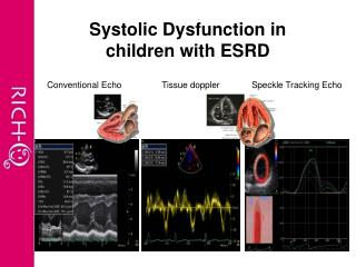 Systolic Dysfunction in children with ESRD