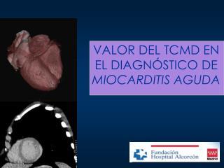 VALOR DEL TCMD EN EL DIAGNÓSTICO DE   MIOCARDITIS AGUDA