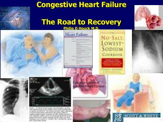 Congestive Heart Failure The Road to Recovery Philip D Houck M.D.
