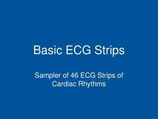 Basic ECG Strips