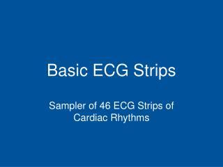Basic ECG Strips