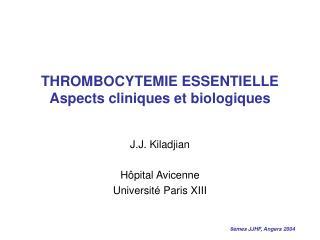 THROMBOCYTEMIE ESSENTIELLE Aspects cliniques et biologiques