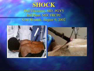 SHOCK Phil Ukrainetz, MD, PGY5 Jeff Plant, MD, FRCPC Core Rounds, August 9, 2002
