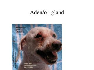 Aden/o : gland